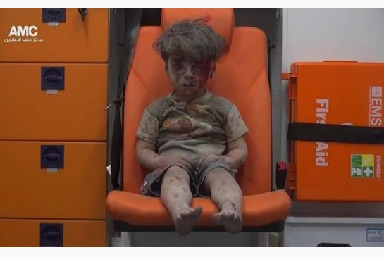 syrian bombing boy